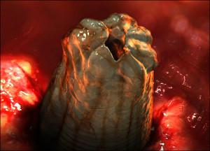 toxocariasis-toxocara-roundworm